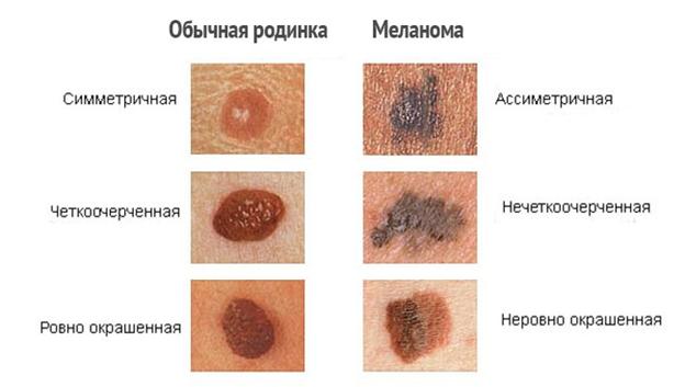признаки меланомы на начальной стадии
